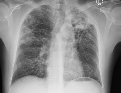 Behandlung der Tuberkulose und nichttuberkulösen Mykobakteriose in der Evangelischen Lungenklinik